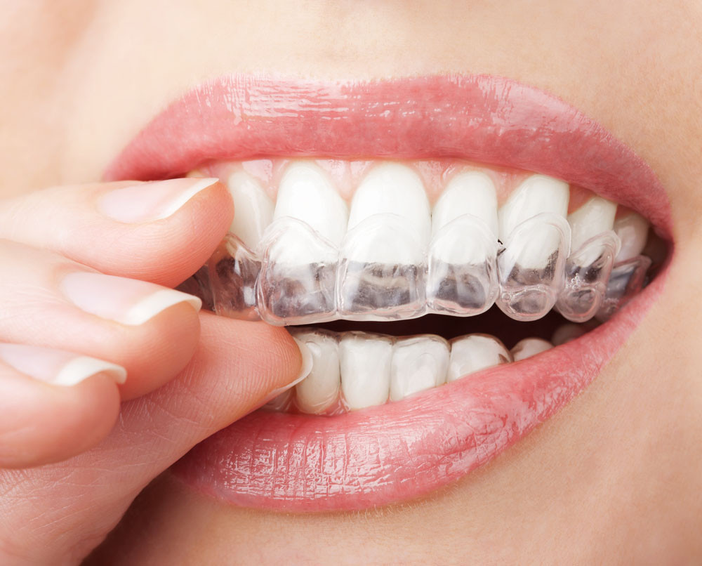 The 5 Best Home Teeth Whitening Kits 2020
