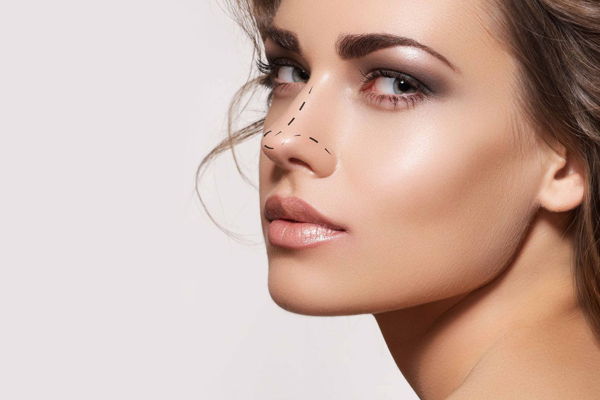 Non-Surgical Nose Job Fillers
