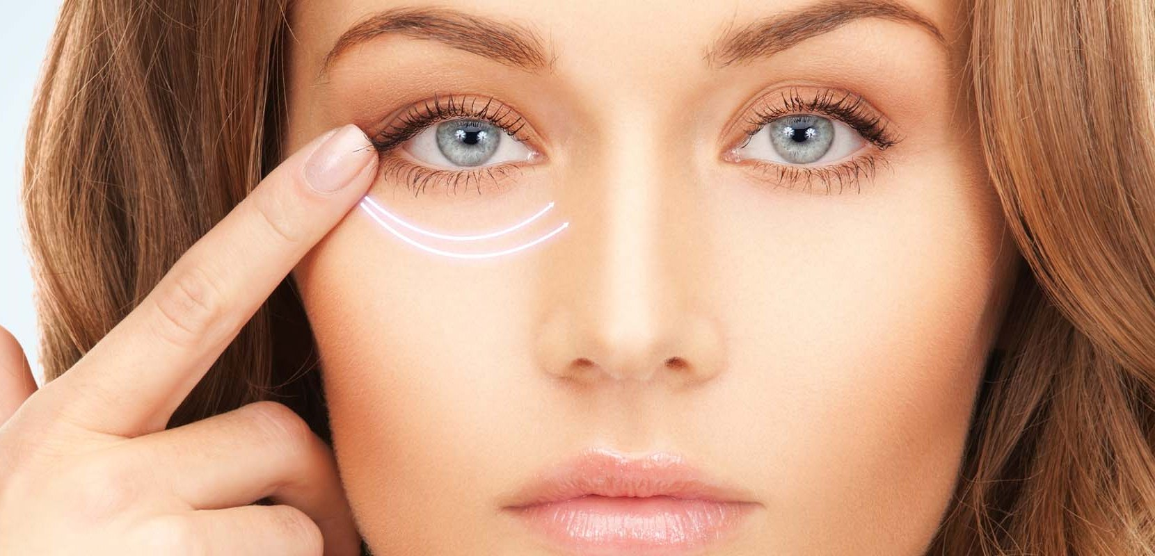 Tear Trough Fillers - 5 Things You Need to Know
