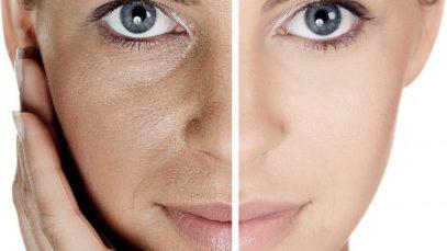 PRP Facial Therapy