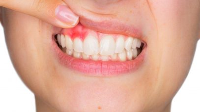 5 Signs You May Have Gum Disease