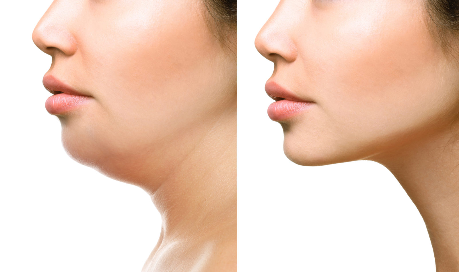 5 Things You Need to Know About Kybella Injections