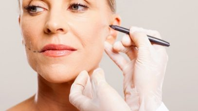 What is a Facial Fat Transfer?