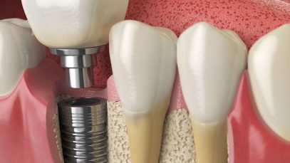 Do You Need a Bone Graft Before Getting Dental Implants?