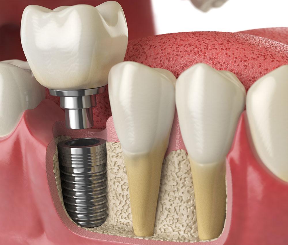 Do You Need a Bone Graft Before Getting Dental Implants?